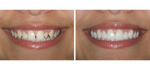 Ortodoncia para adultos en Lleida ODC