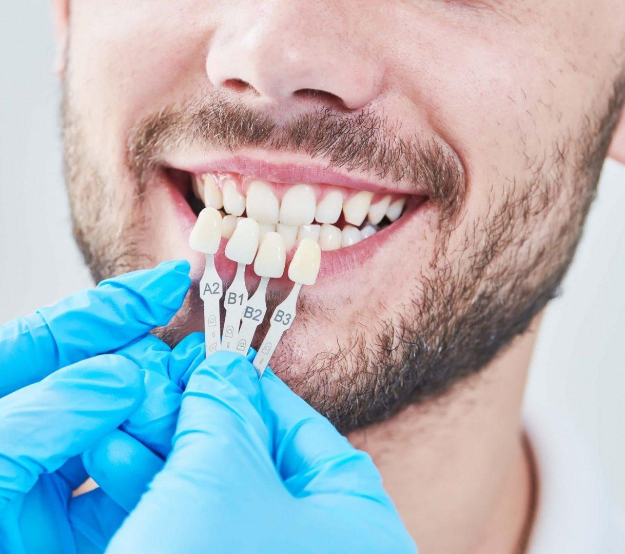 Clinicas dentales en Lleida ODC