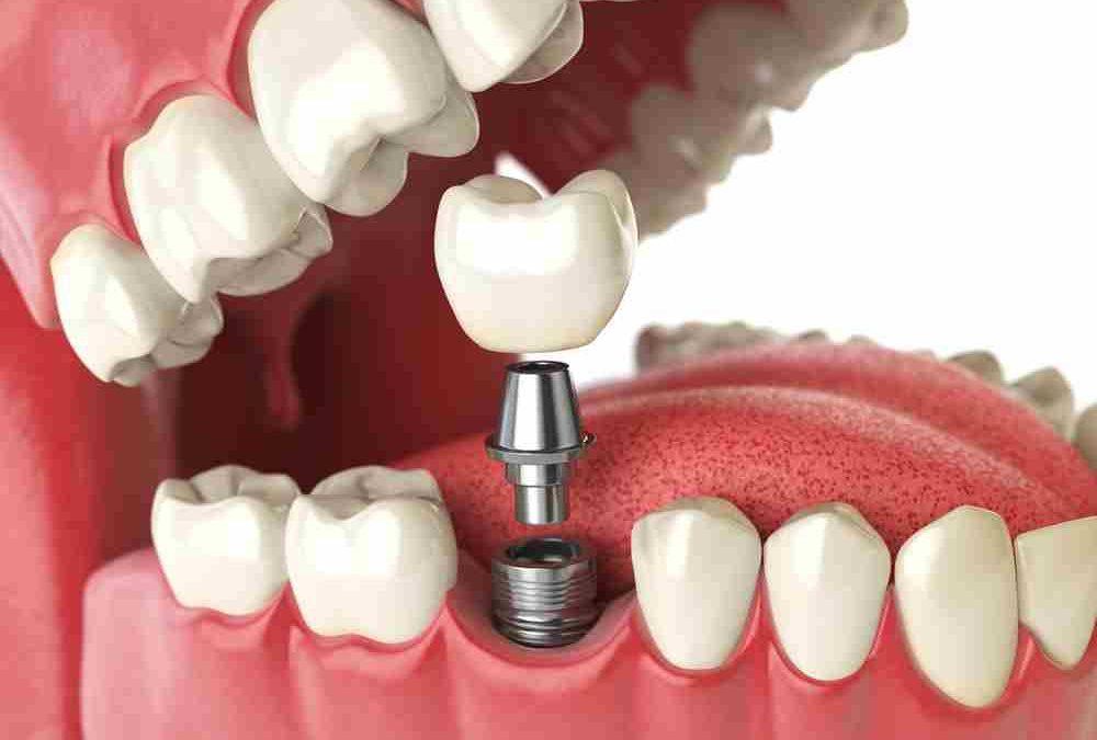 médicos especialistas en implantes en Lleida Opción Dental Clínicas