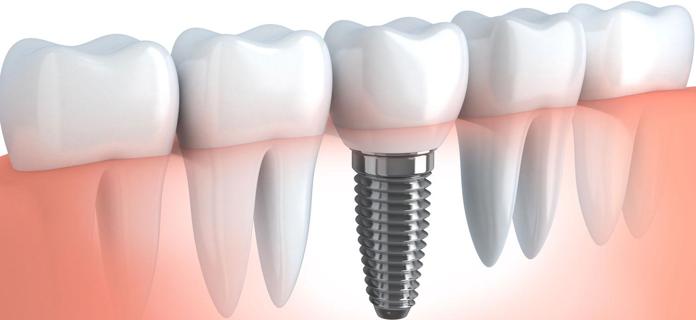 médicos especialistas en implantes dentales en Lleida detalle tornillo